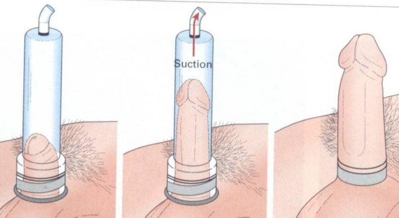 pompa pene come funziona