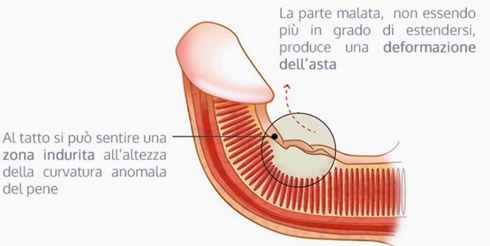 erezione curva del pene)